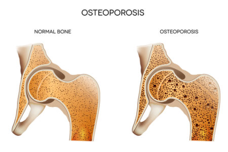 What is osteoporosis | Dr Brian Cable MD | Brian M Cable MD