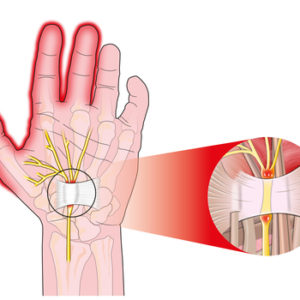 What is carpal tunnel syndrome   Dr Brian Cable M.D.   Dr Brian Cable MD