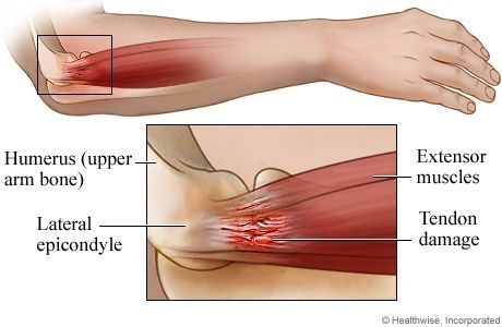 What is tennis elbow | Dr Brian Cable M.D. | Dr Brian Cable MD