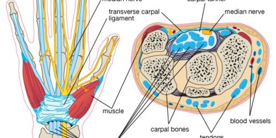 Dr Brian Cable MD explains carpal tunnel syndrome.