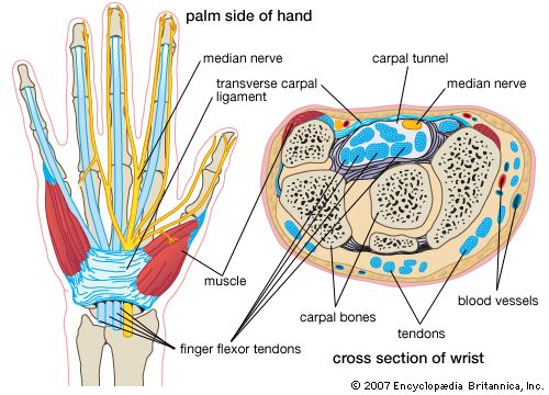 What is carpal tunnel syndrome | Dr Brian Cable M.D. | Dr Brian Cable MD