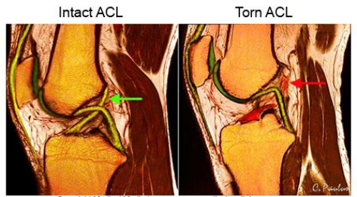 What is an ACL tear | Dr Brian Cable M.D. | Brian Cable MD