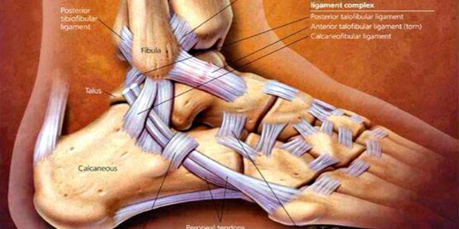 Doctor, why do I keep spraining my ankle?