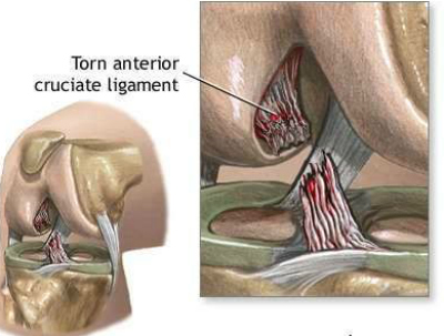 What is an ACL tear   Dr Brian Cable M.D.   Brian Cable MD